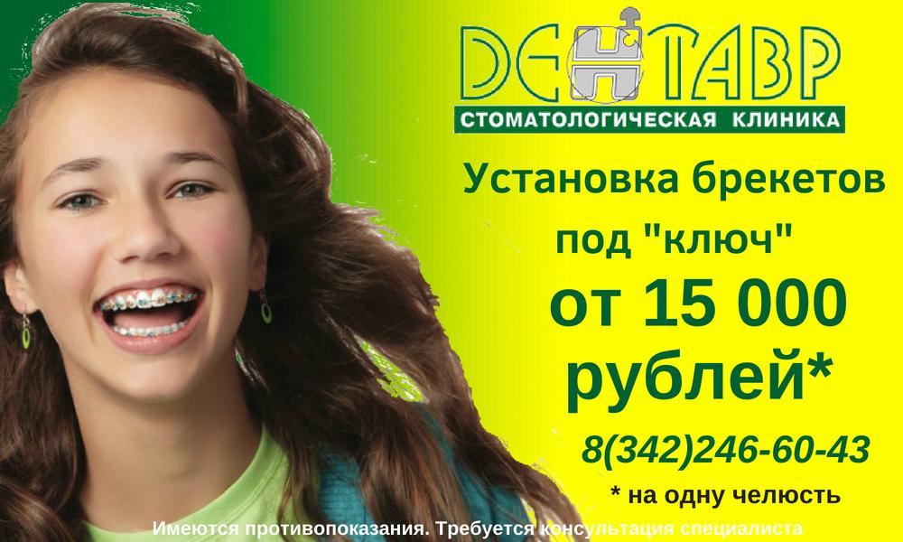 ustanovka-breketovpod-_klyuch_-2