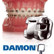 Система брекетов DamonQ