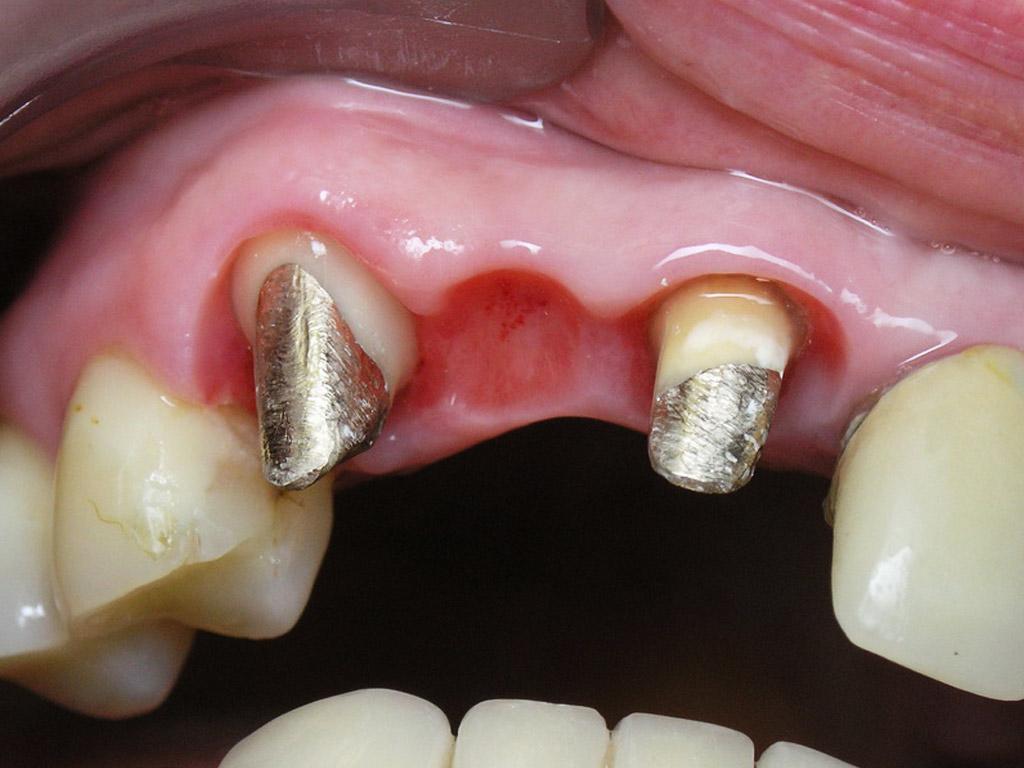 Штифтовкладки на передних зубах